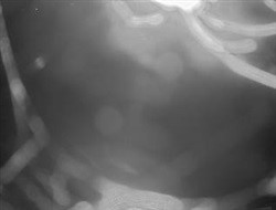 Webcam For The Costa Mediterranea